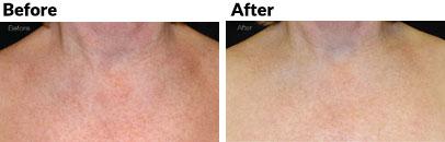 aesthetica-md-laser-limelight-facial-before-and-after-chest
