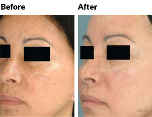 aesthetica-md-laser-limelight-facial-before-and-after-face