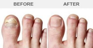 Laser Toenail Fungus Treatment - aesthetica MD