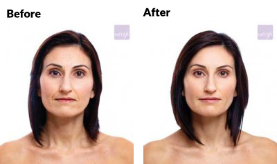 aesthetica-md-soft-lift-before-and-after-age-30
