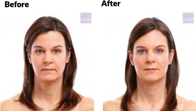 aesthetica-md-soft-lift-before-and-after-age-40