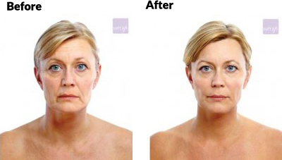 aesthetica-md-soft-lift-before-and-after-age-50